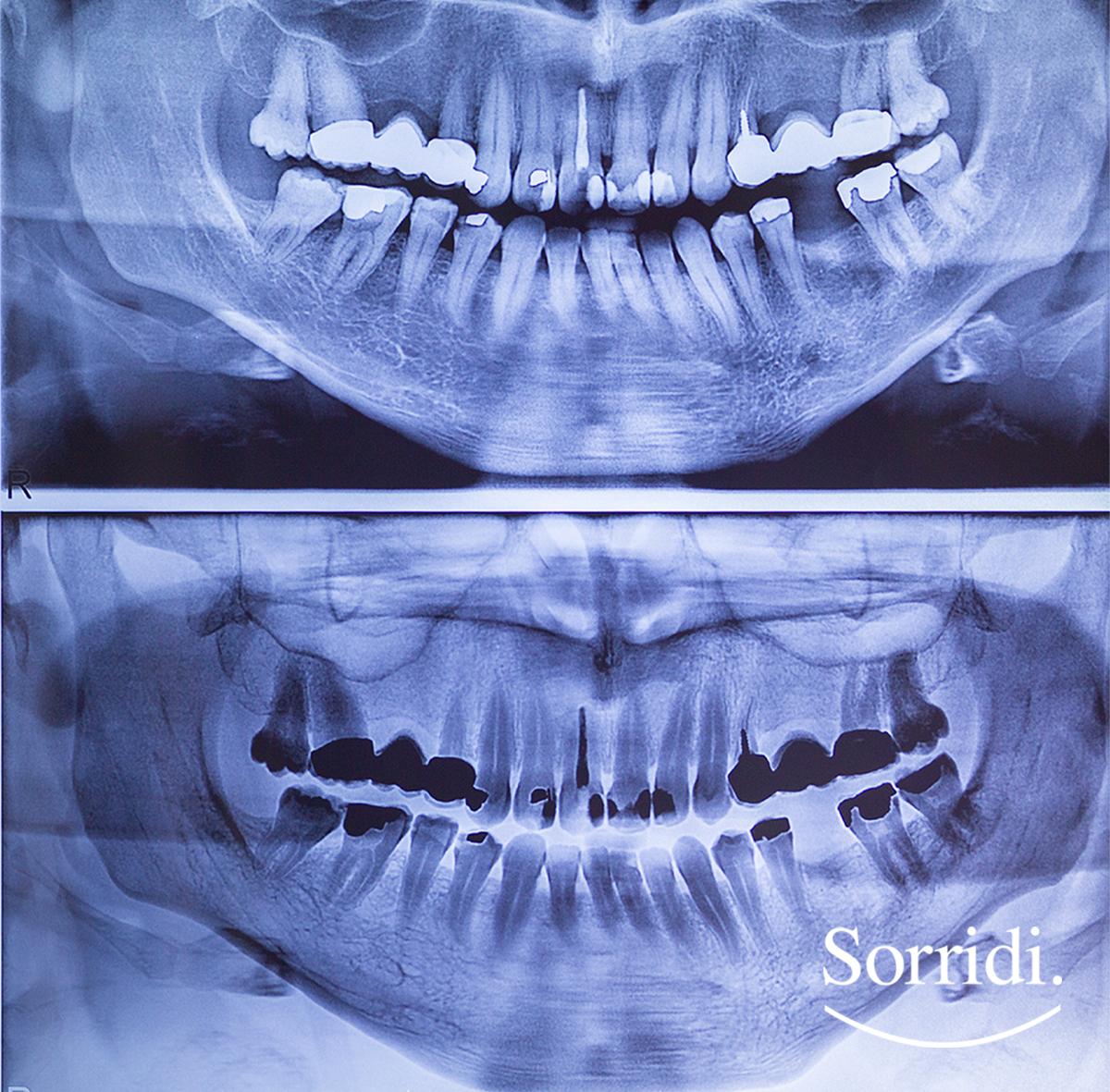 raggi-x-Sorridi-magazine-il-dentista-risponde - radiografie dentali