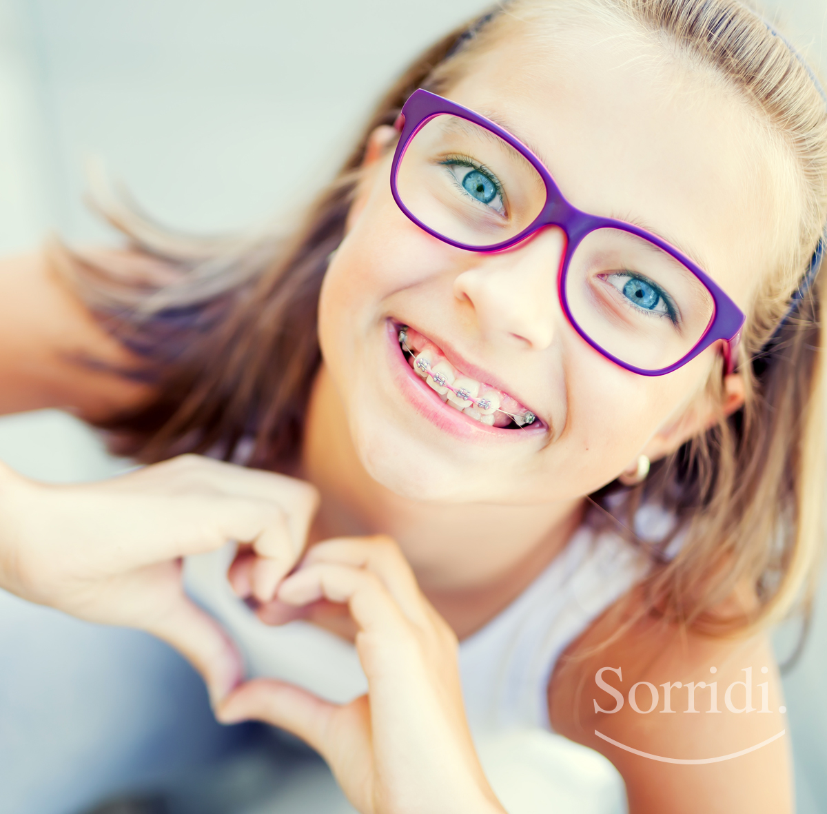 Apparecchi dentali - ortodontici