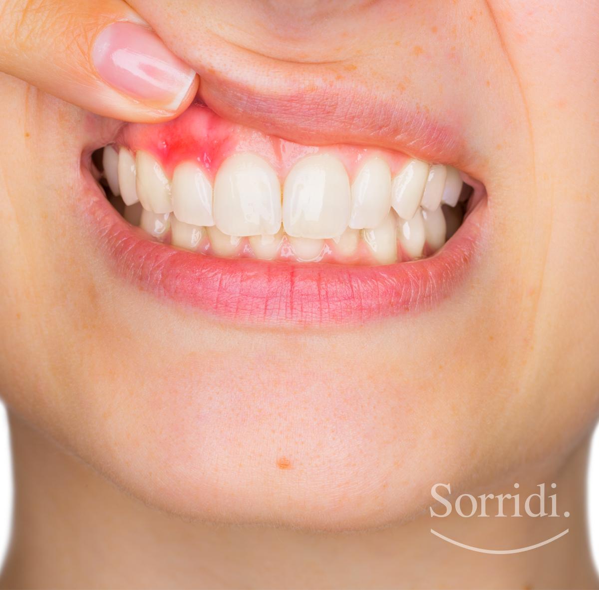 gengivite-alimentazione-sorridi-ch-magazine-dentista-locarno-studio-dott-ponchio