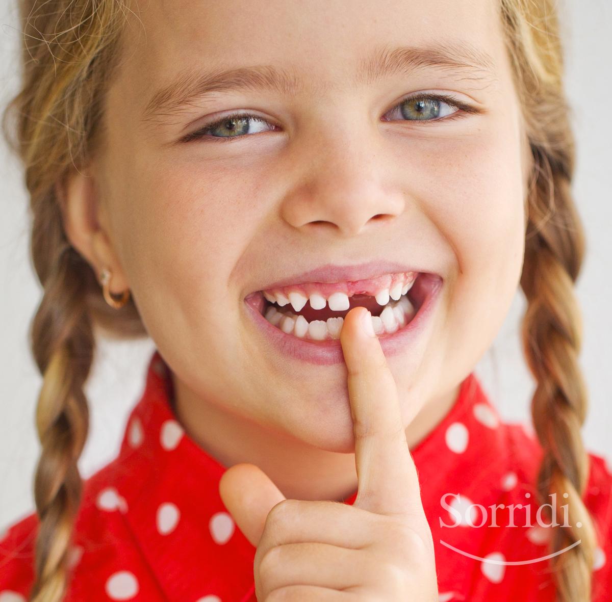 sorridi-ch-magazine-dentista-locarno-denti-da-latte-bambini