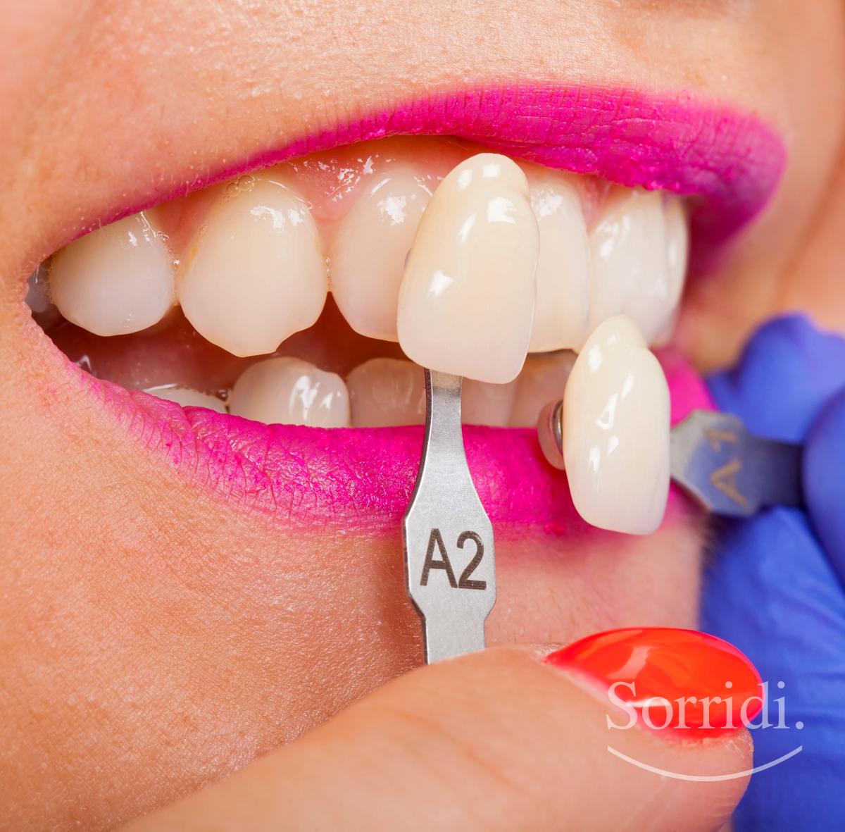 sorridi-ch-magazine-dentista-locarno-faccette-dentali
