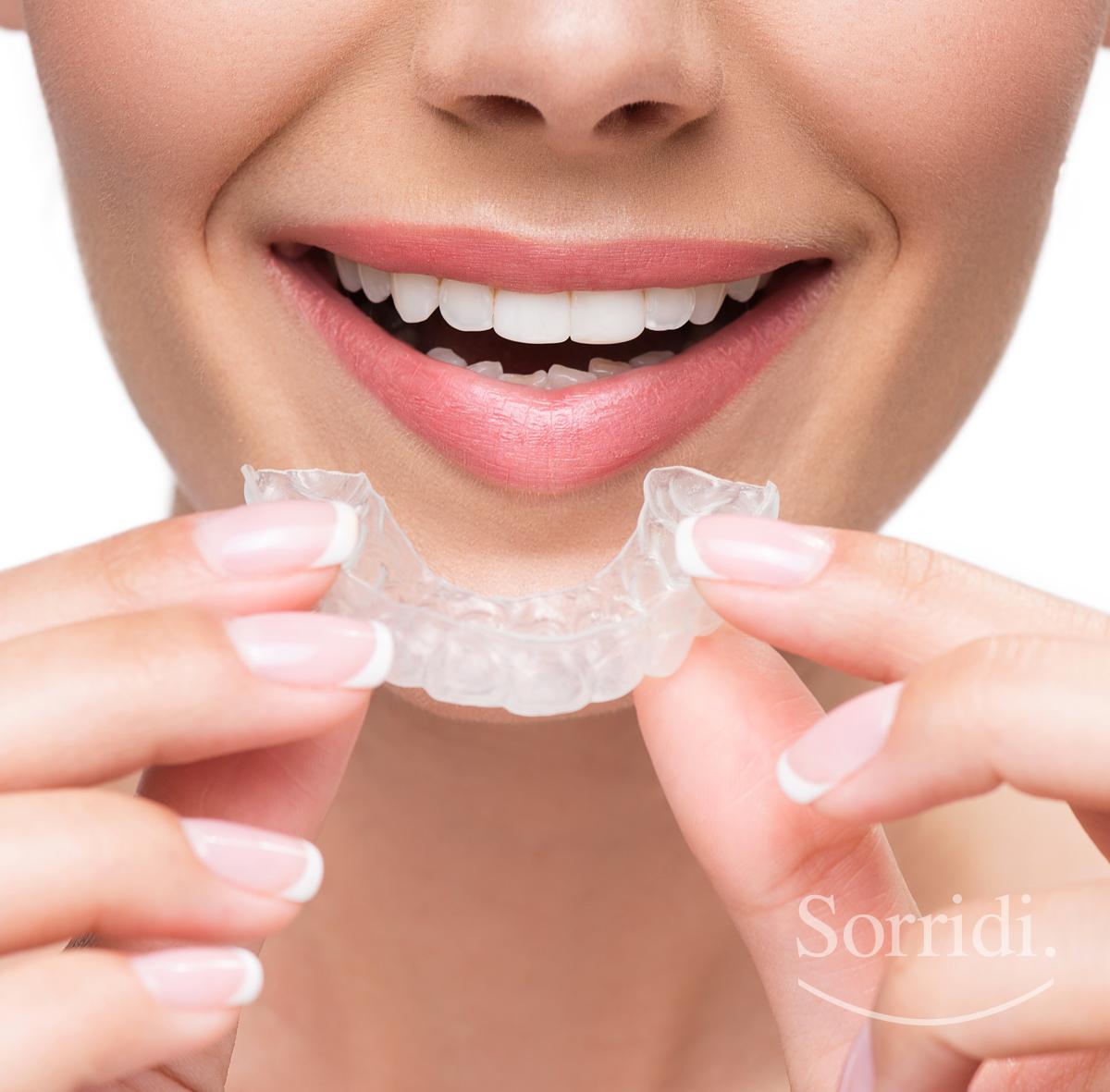 sorridi-ch-magazine-dentista-locarno-apparecchio-invisibile