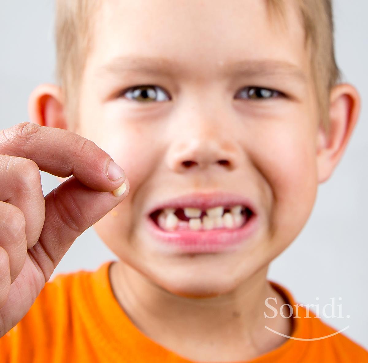 sorridi-ch-magazine-dentista-locarno-denti-da-latte-rottura-bambini