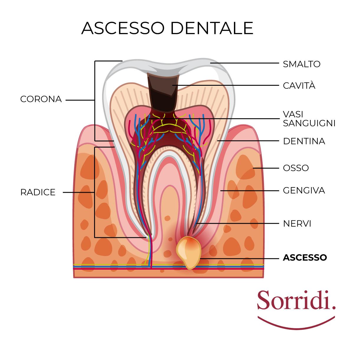 sorridi-ch-magazine-dentista-locarno-ascesso-dentale