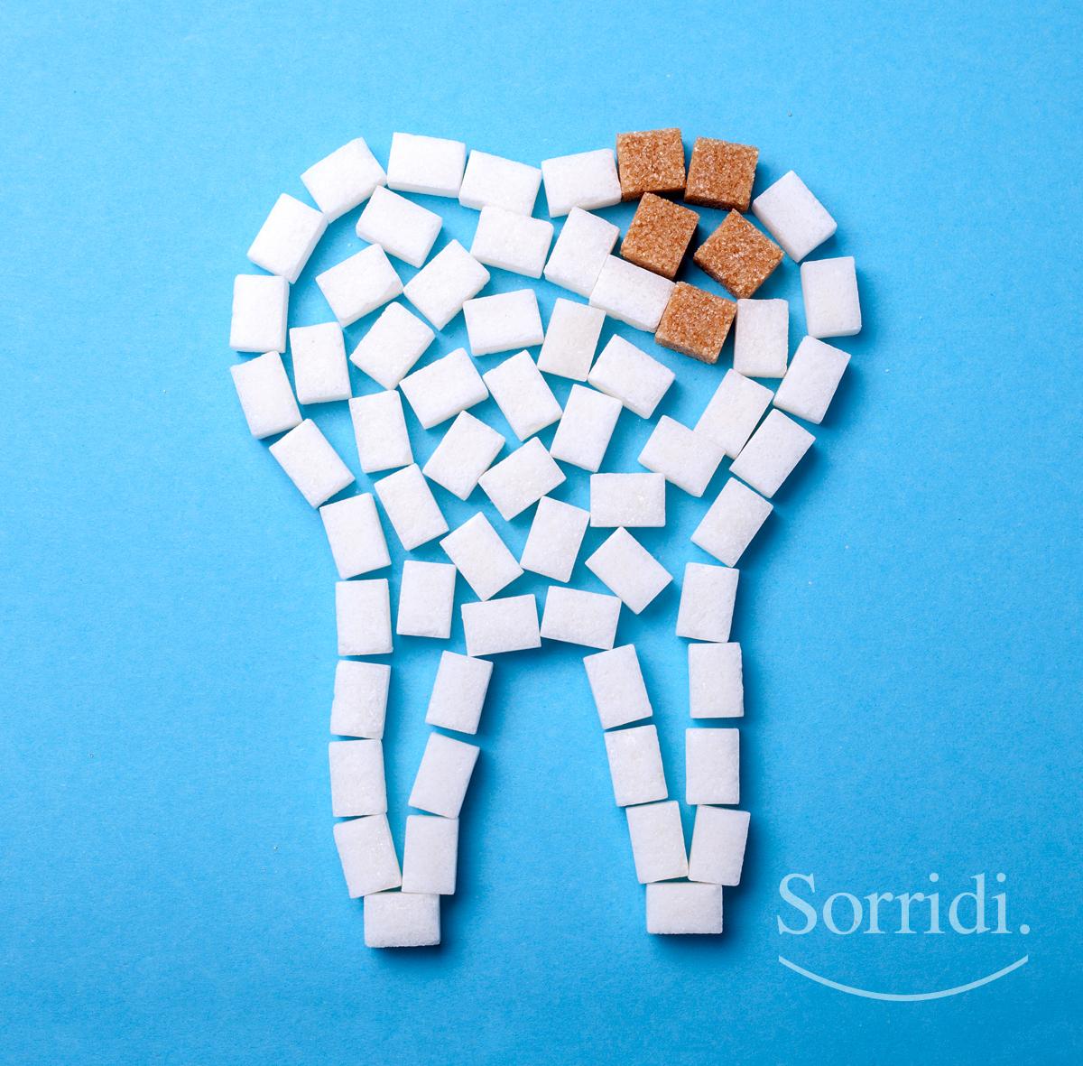 sorridi-ch-magazine-dentista-locarno-sigillatura-denti-bambini