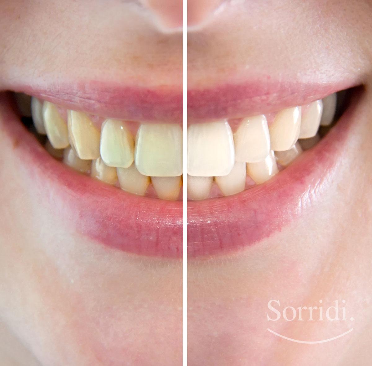 sorridi-ch-magazine-dentista-locarno-sbiancamento-denti
