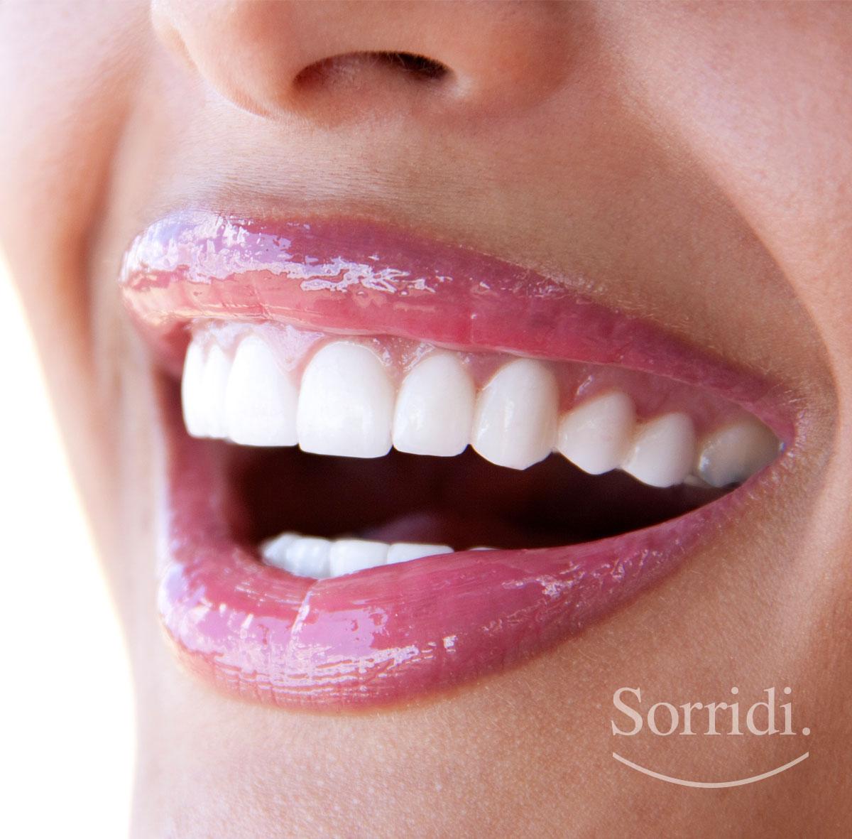 sorridi-ch-sbiancamento-dentale-magazine-dentista-locarno