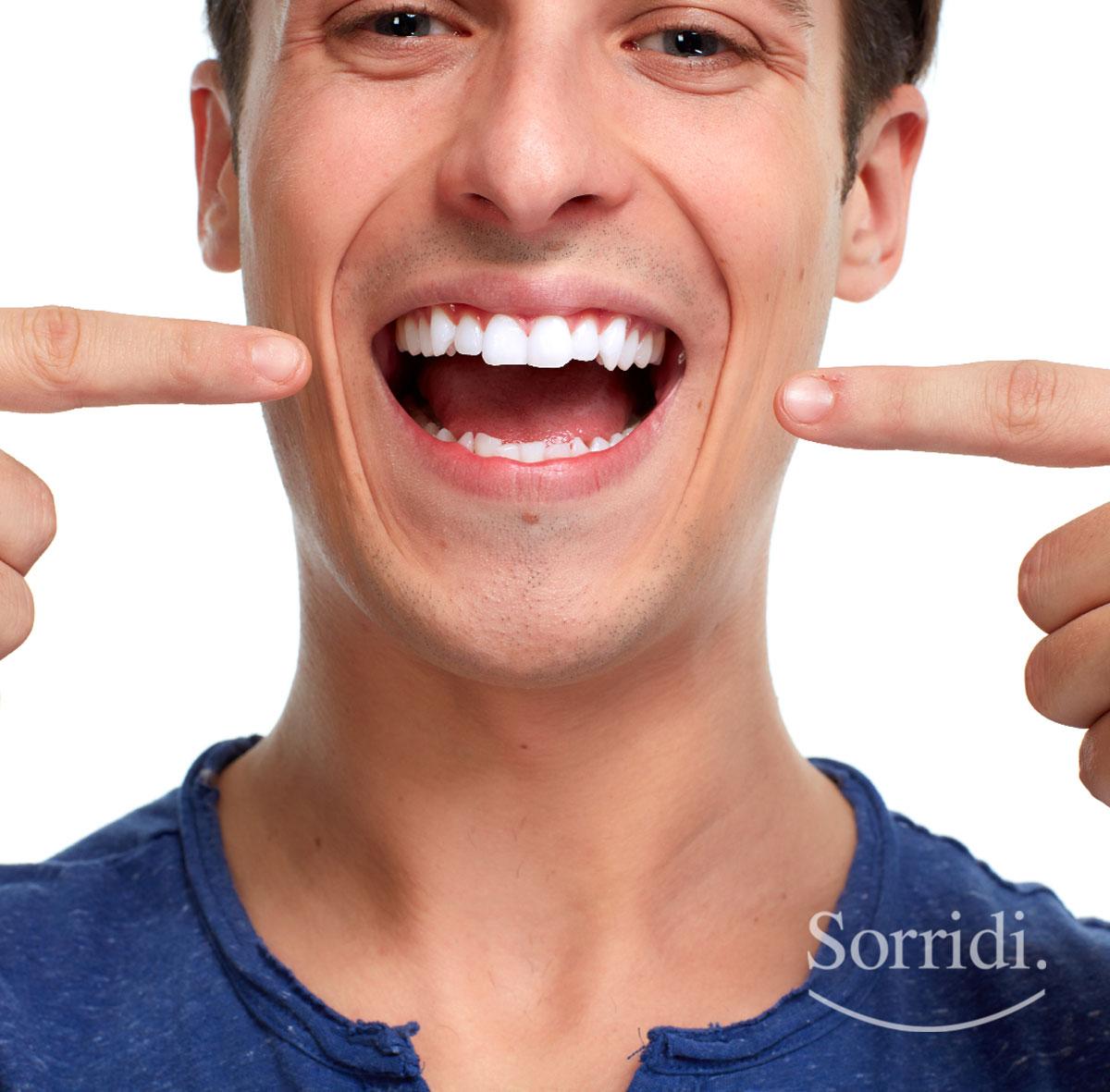 sorridi-ch-magazine-ridurre-e-prevenire-la-gengivite