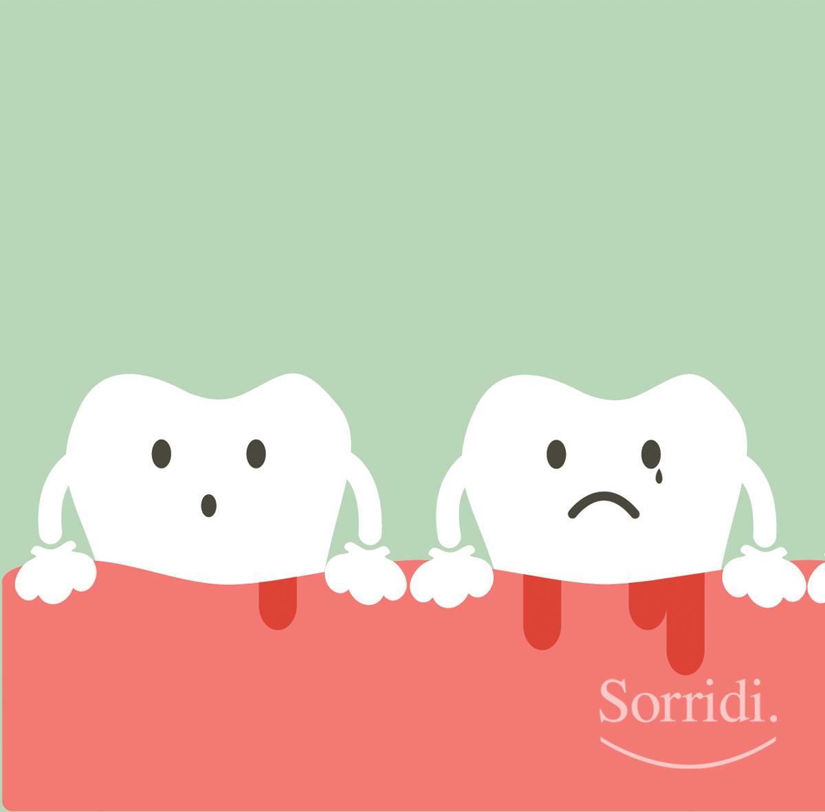Sorridi-ch-magazine-curare-la-gengivite