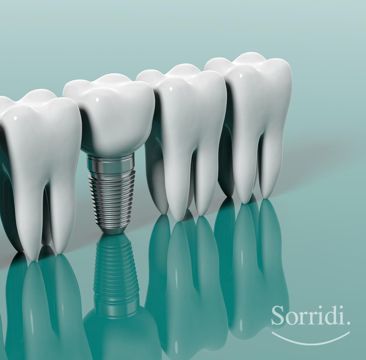 sorridi-ch-magazine-impianti-dentali