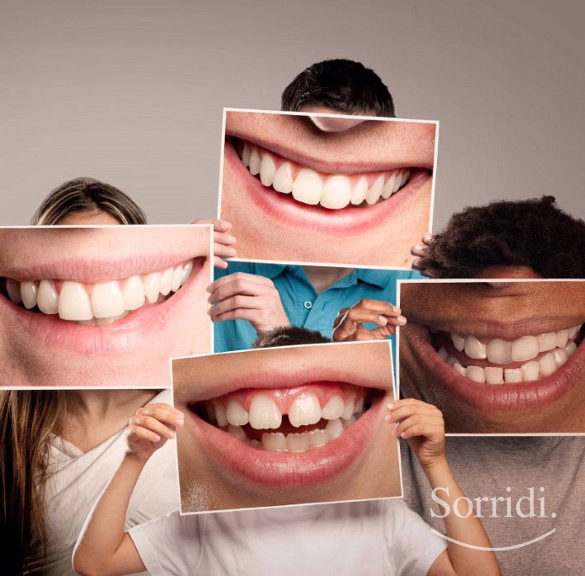 sorridi-ch-magazine-malocclusioni-dentali-di-bambini-e-adulti