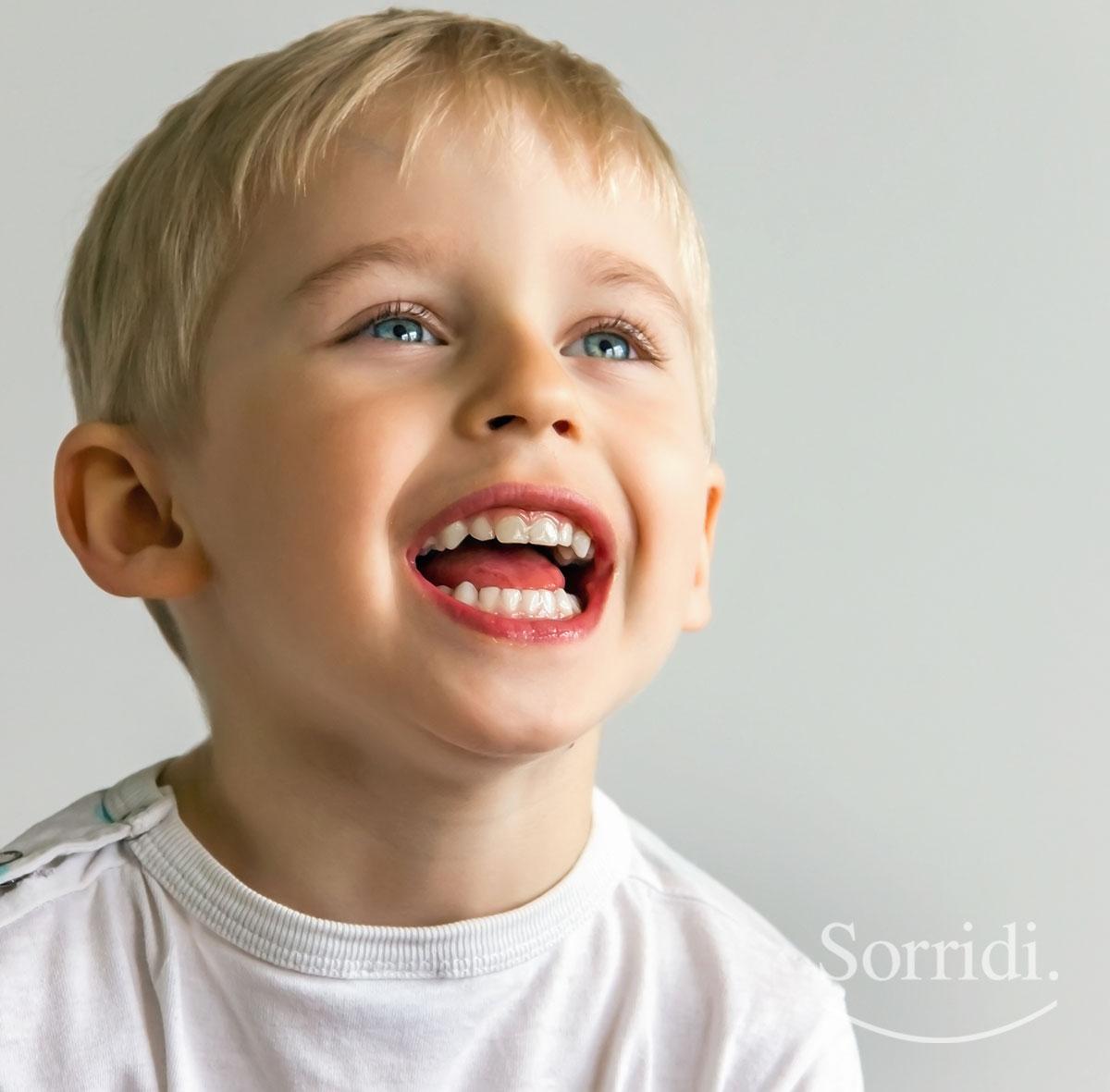 Sorridi-ch-magazine-vantaggi-della-sigillatura-dentale-nei-bambini