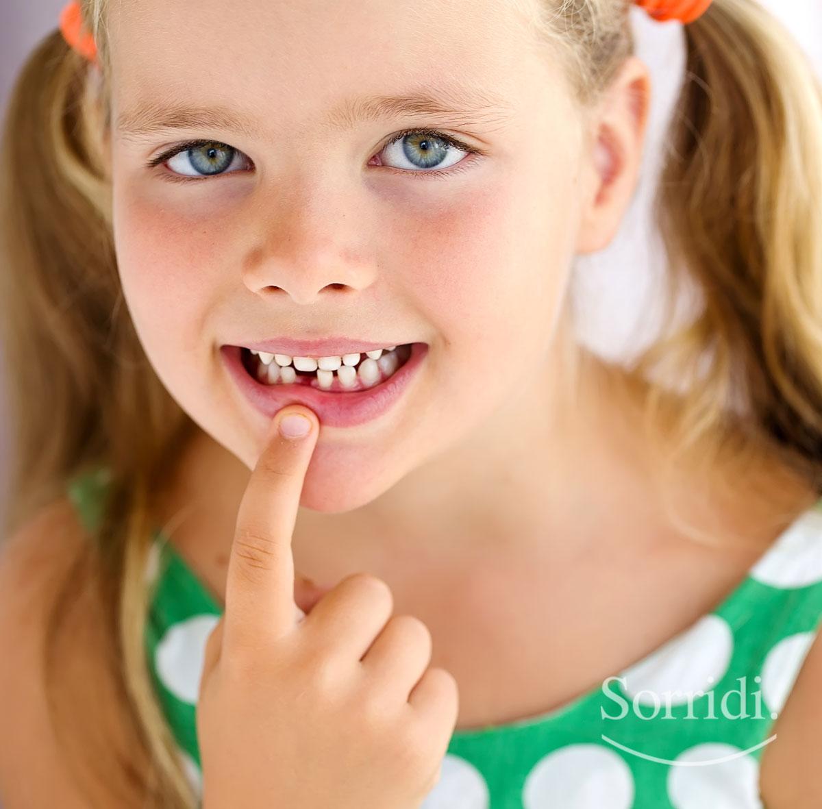 Sorridi-ch-magazine-cosa-fare-se-un-dente-da-latte-non-cade