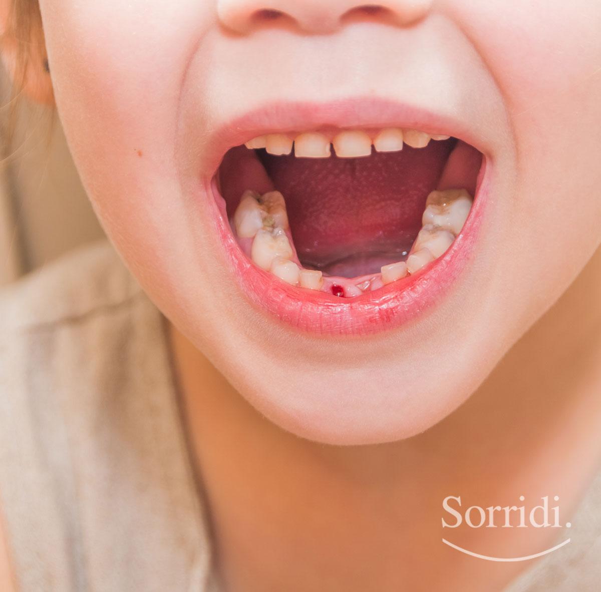 Sorridi-ch-magazine-carie-nei-bambini-e-consumo-eccessivo-di-zuccheri