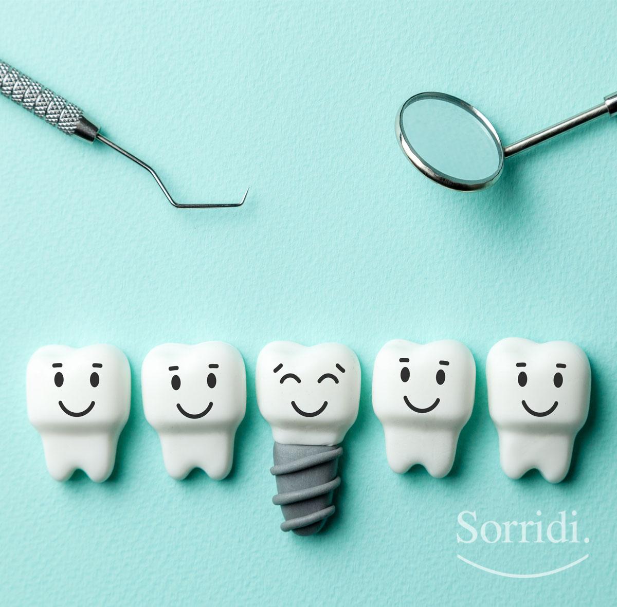 Sorridi-ch-magazine-implantologia-dentale-moderna