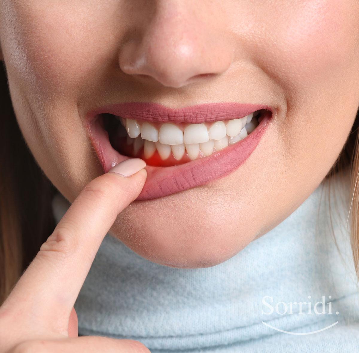 Sorridi-ch-magazine-diabete-e-parodontite