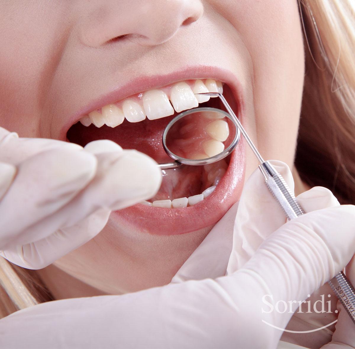 Sorridi-ch-magazine-fluoro-e-salute-dentale