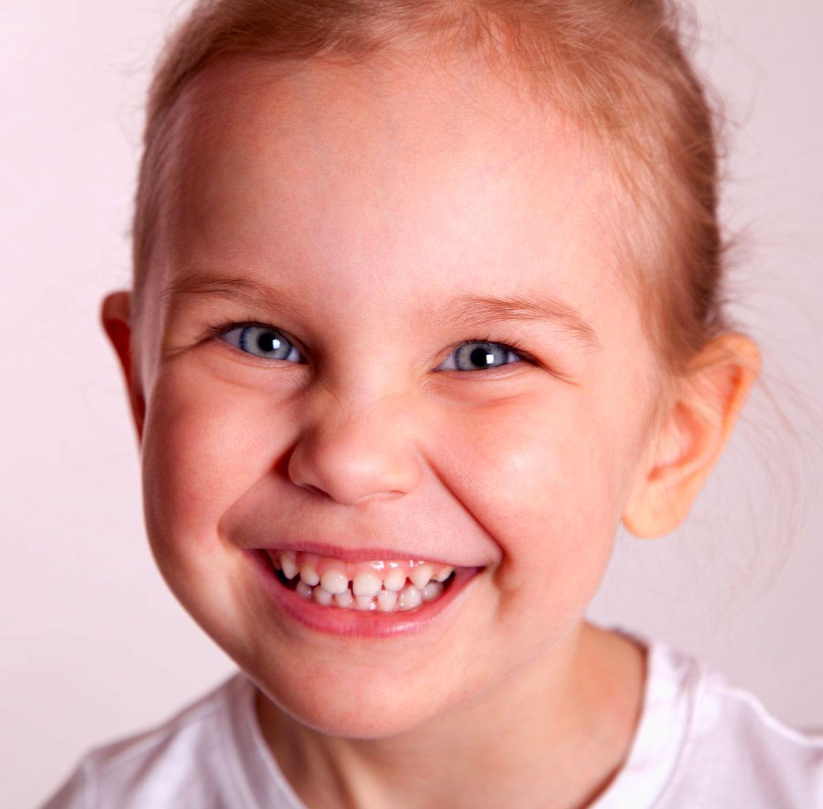 Sorridi-ch-magazine-evitare-che-i-denti-dei-bambini-crescano-storti