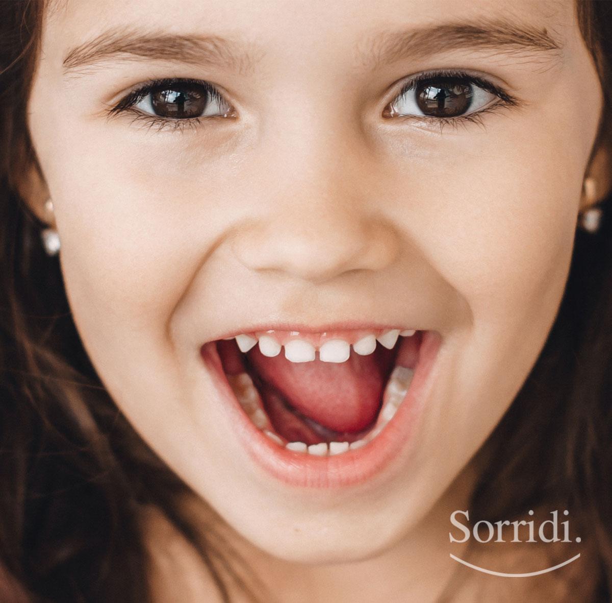 Sorridi-ch-magazine-test-salivari-per-prevenire-la-carie-nei-bambini