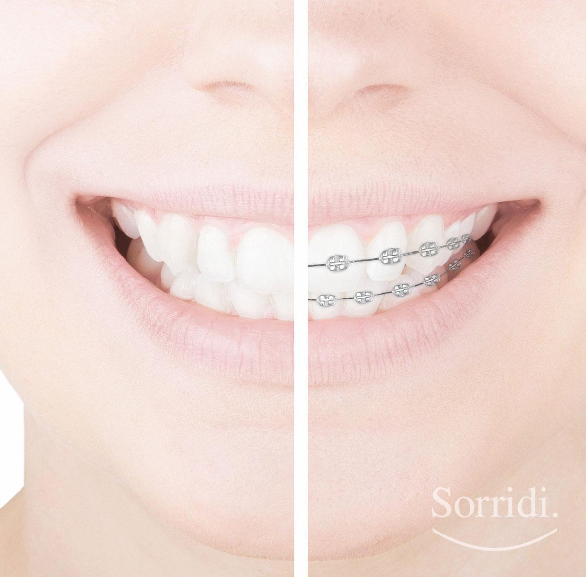 Sorridi-ch-magazine-apparecchio-dentale-invisibile-o-fisso