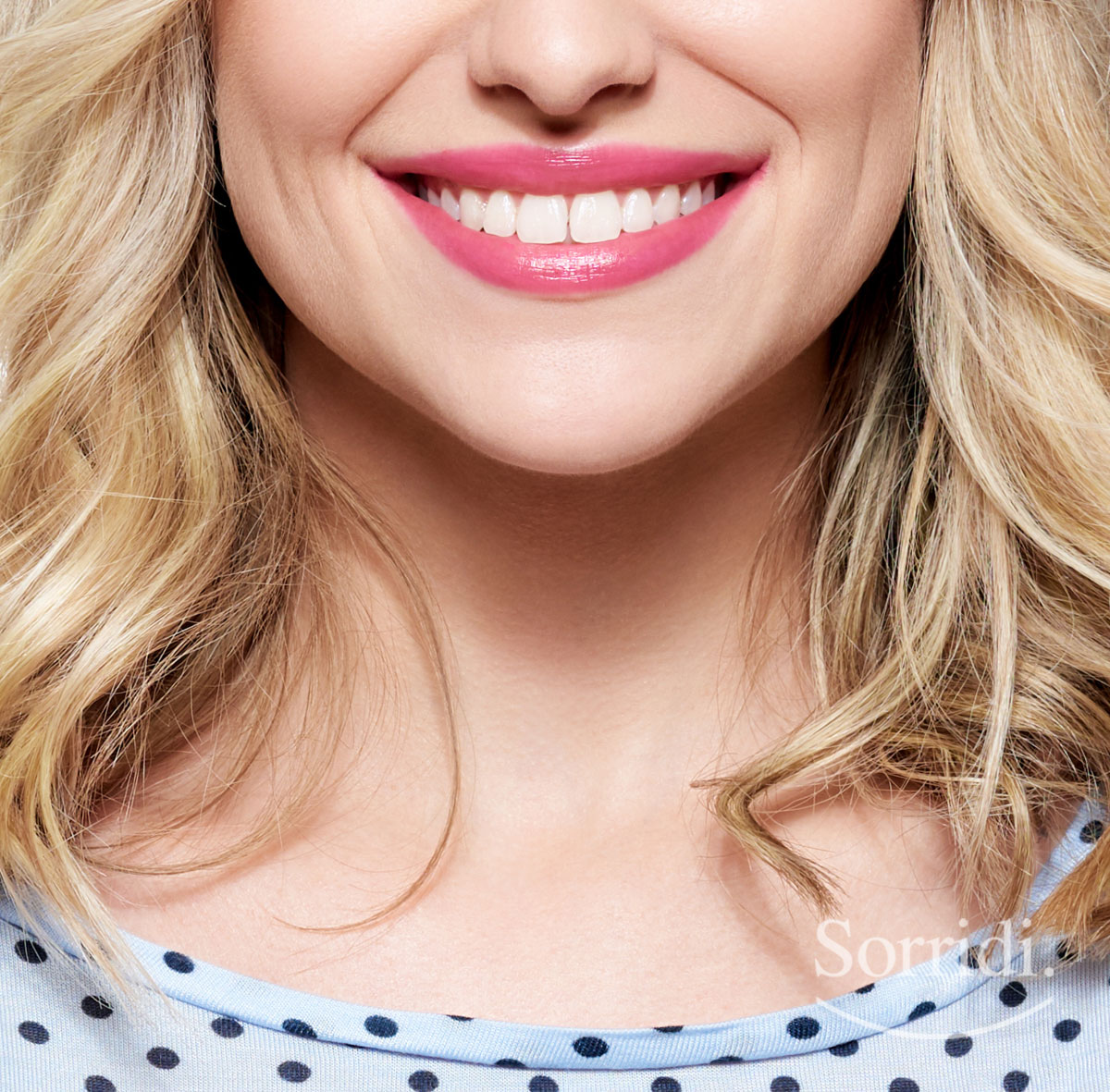 Sorridi-ch-magazine-estetica-dentale-per-migliorare-il-sorriso-velocemente
