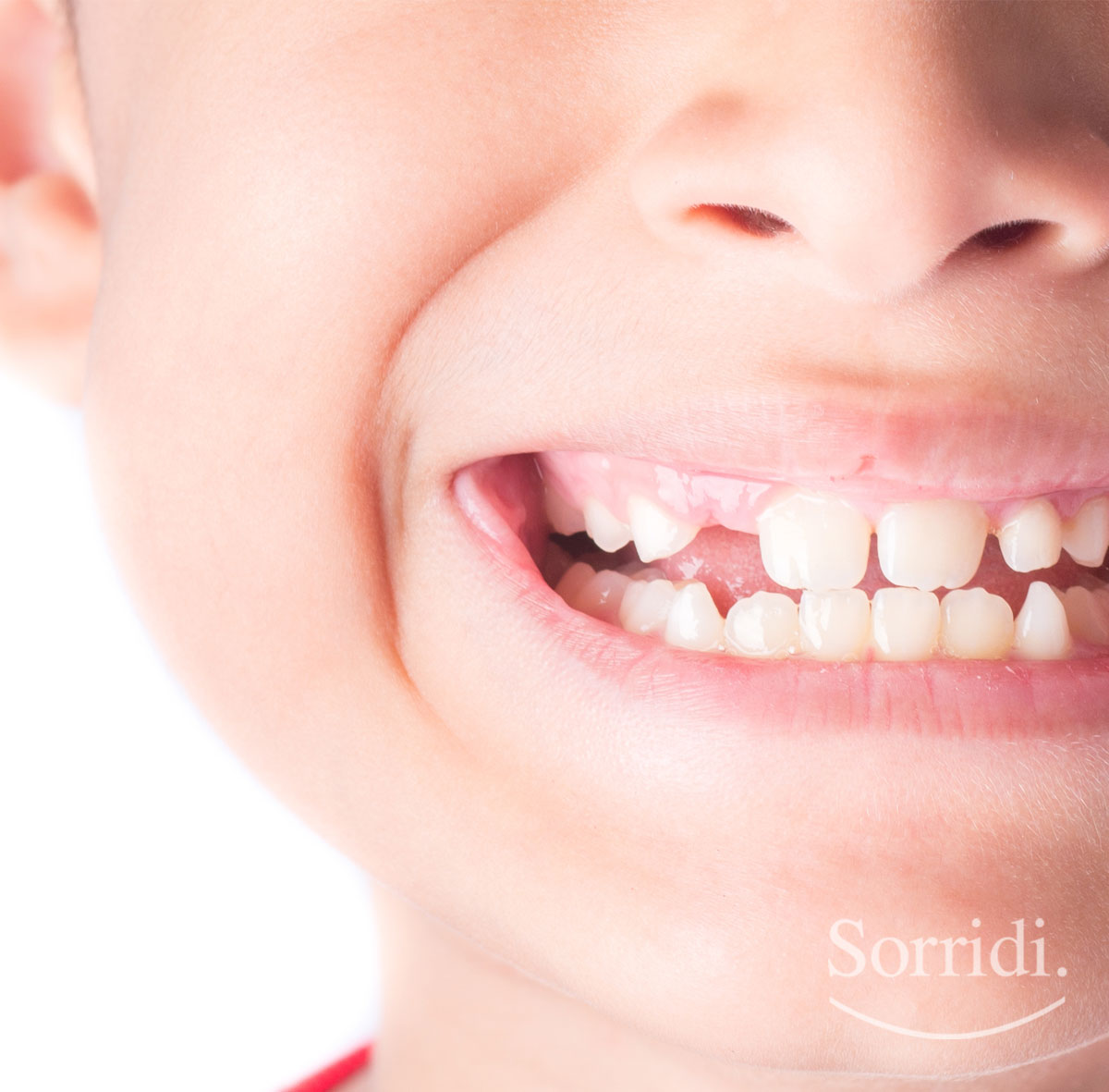 Sorridi-ch-magazine-agenesie-dentali-nei-bambini