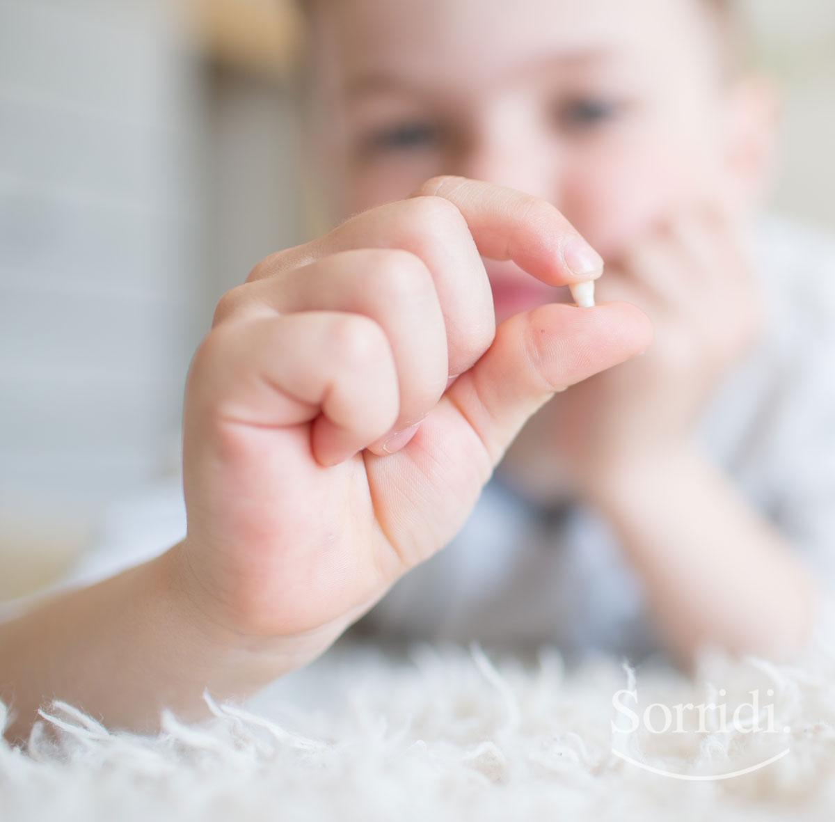 Sorridi-ch-magazine-estrazione-del-dente-da-latte