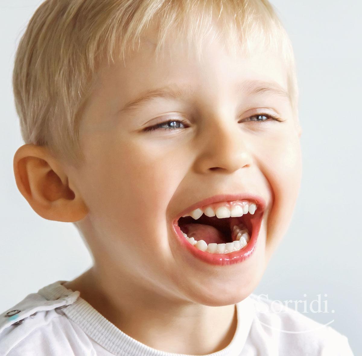Sorridi-magazine-ch-dente-incluso-nei-bambini