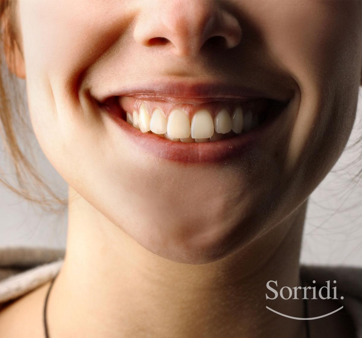Sorridi-ch-magazine-sorriso-gengivale