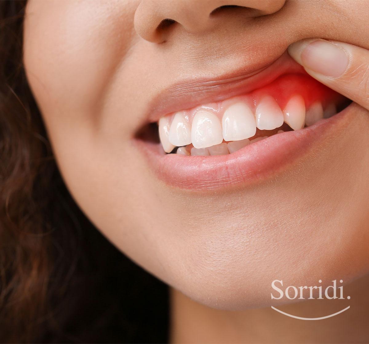 Sorridi-ch-magazine-iperplasia-gengivale