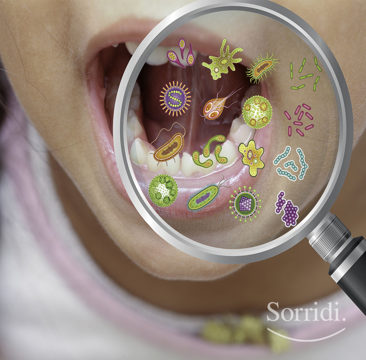 Sorridi-ch-magazine-guida-alle-infezioni-orali-nei-bambini